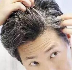 头顶脱发是病吗湖北补发网www.whbfyf.cn