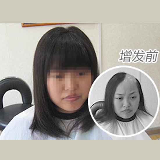 武汉脂溢性脱发隐形补发