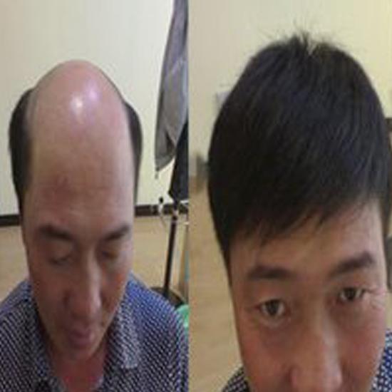武汉补发治疗脱发