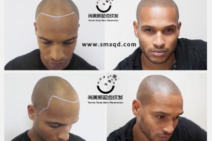 SMP纹发