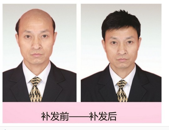 武汉植发织发补发中心