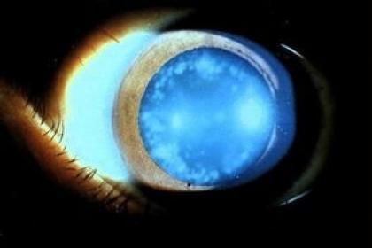 急性青光眼与长时间黑灯看手机无必然联系