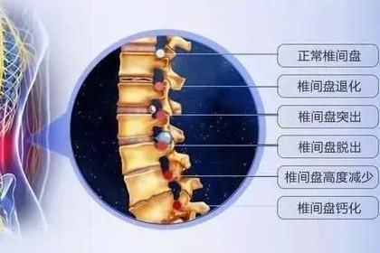 深圳观澜腰椎间盘突出哪里治疗好,增加生活质量,优势专科医院