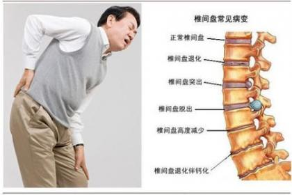 深圳观澜腰椎间盘突出该怎么治,收费合理,根据情况制定方案