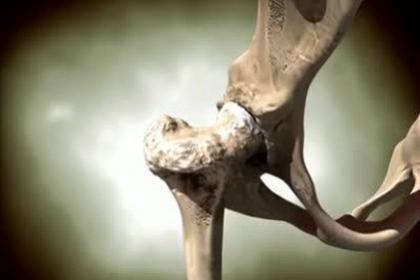 深圳大鹏股骨头缺血性坏死治疗,帮您解决的股骨疼痛难忍