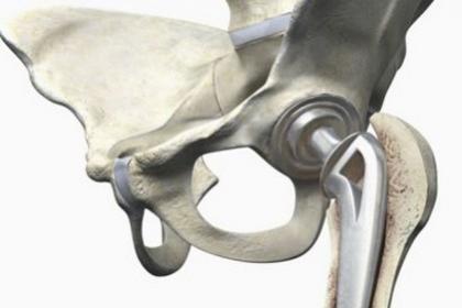 深圳梅沙股骨头坏死治疗哪家好,治痛保髋,保住股骨头-避免置换
