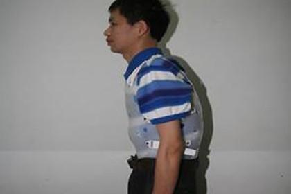 深圳布吉强直怎么治,控制炎症,緩解症状
