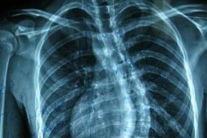 深圳龙岗强直性脊柱炎治疗,帮助众多强直病人恢复健康