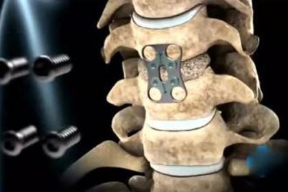 深圳公明腰椎间盘突出怎么治,不用手术也是可以慢慢的治愈