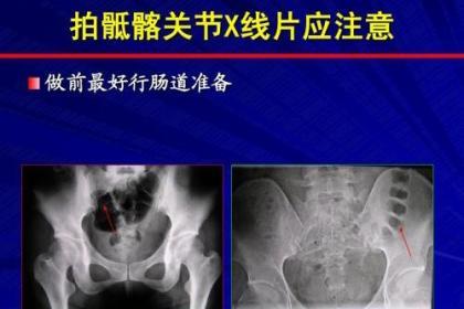 深圳南山区强直怎么治,调节免疫功能抗复发