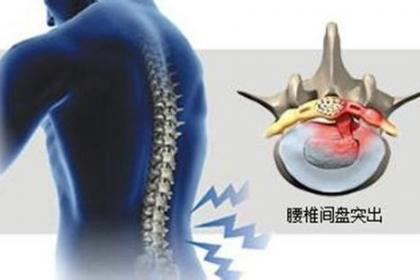 深圳观澜腰椎间盘突出治疗,临床+恢复,专业治疗腰间盘突出